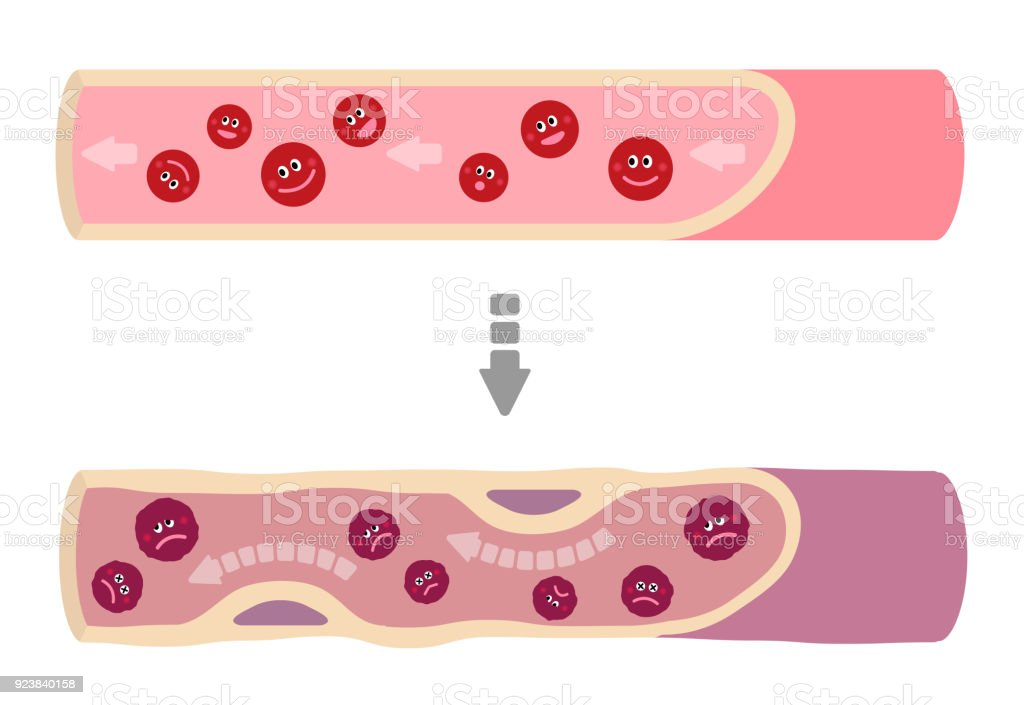 Illustration that healthy blood turns into muddy blood. vector art illustration