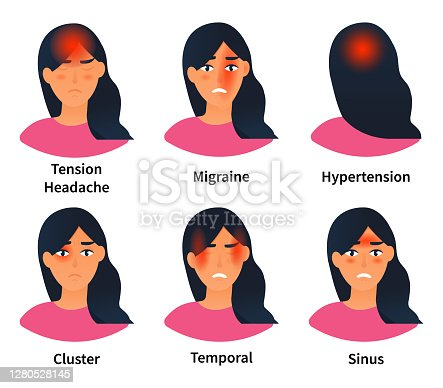 istock Illustrations showing types of headaches 1280528145