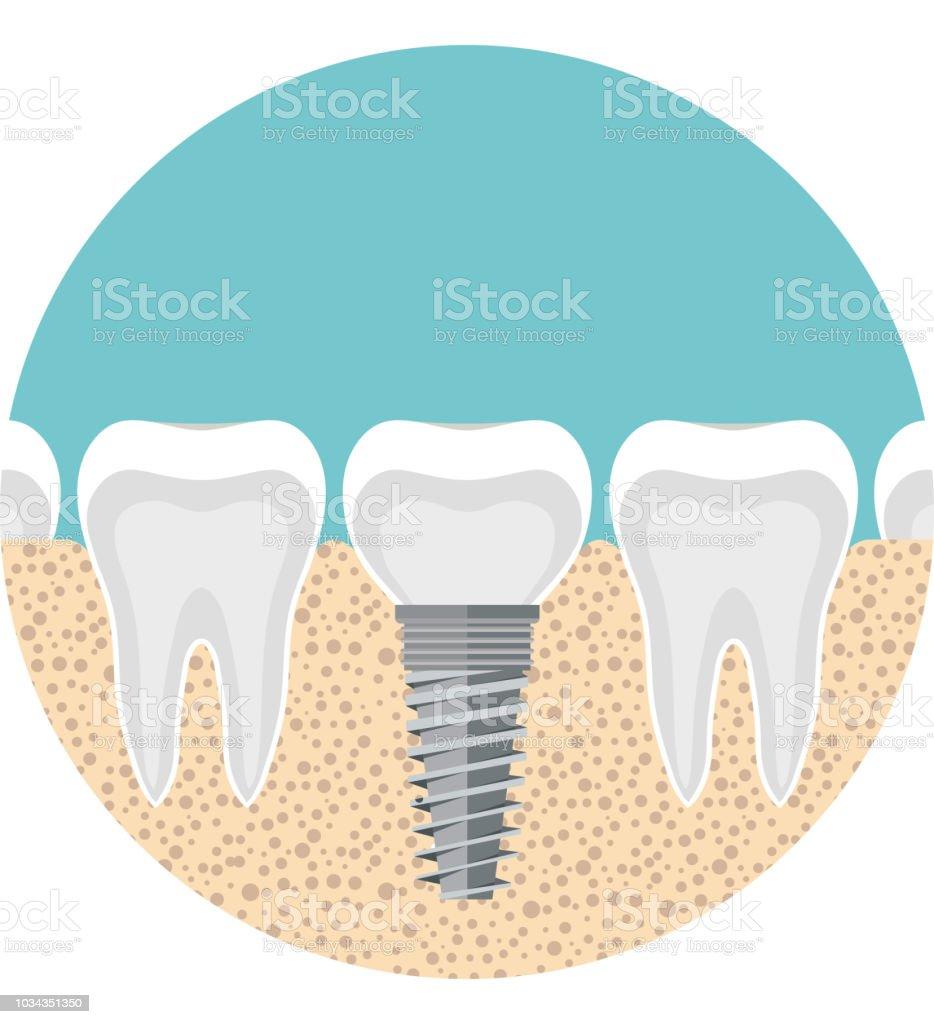 Implantat Eines Menschlichen Zahnes Anatomie Des Zahneskonzepts ...