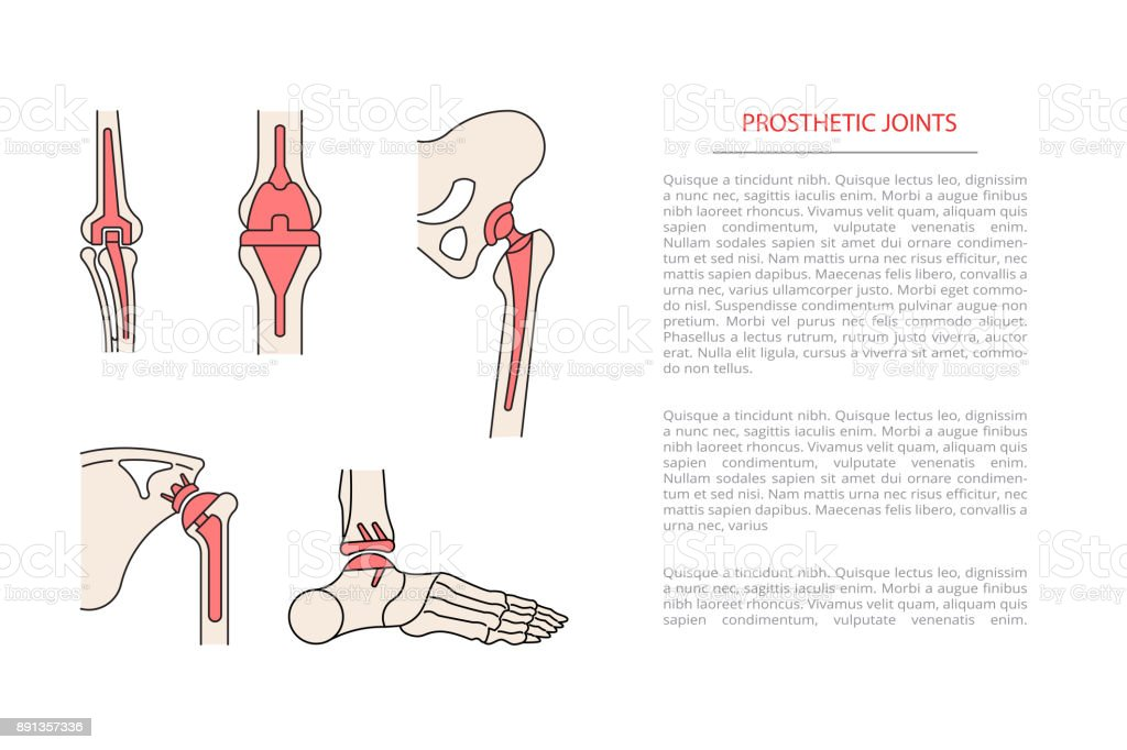 implantation joint skeleton vector art illustration