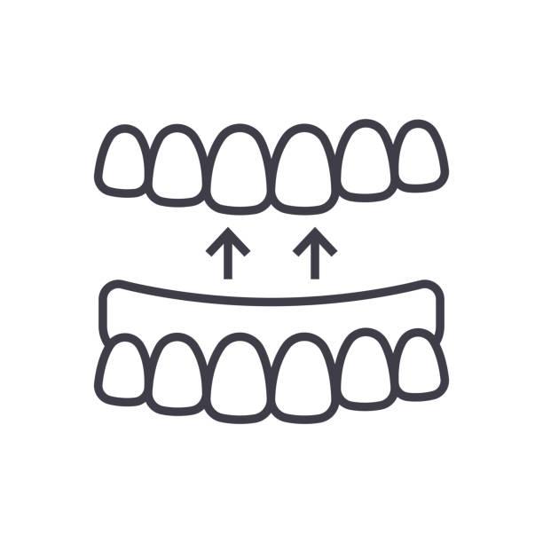 implanted teeth vector line icon, sign, illustration on background, editable strokes vector art illustration