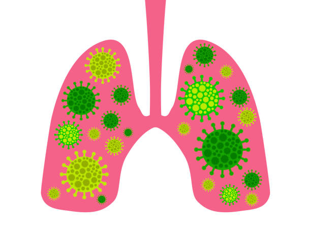 Infection in the lungs. Coronavirus 2019-nCoV, middle east respiratory syndrome. Vector illustration Infection in the lungs. Coronavirus 2019-nCoV, middle east respiratory syndrome. Vector illustration sudden acute respiratory syndrome stock illustrations