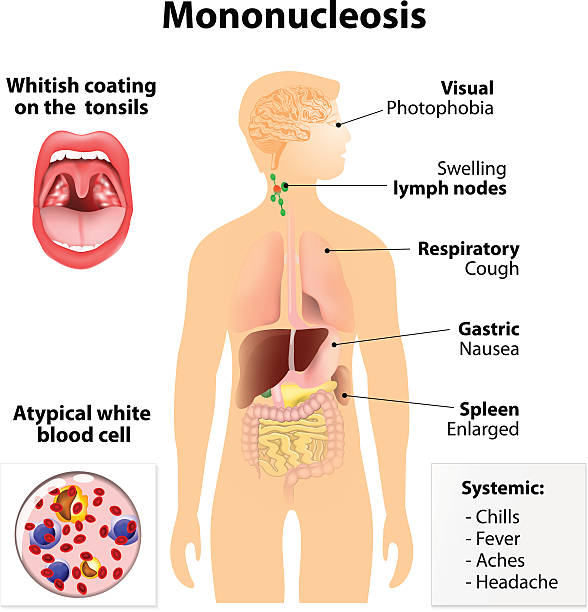 an analysis of the causes of infectious mononucleosis by ebstein barr