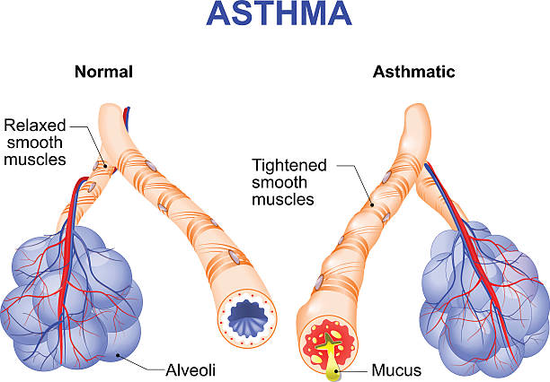 inflamation of the bronchus causing asthma Asthma is a chronic inflammatory disease of the airways that is characterized by narrowing of the airways and dyspnea, wheezing, and coughing. respiratory tract stock illustrations