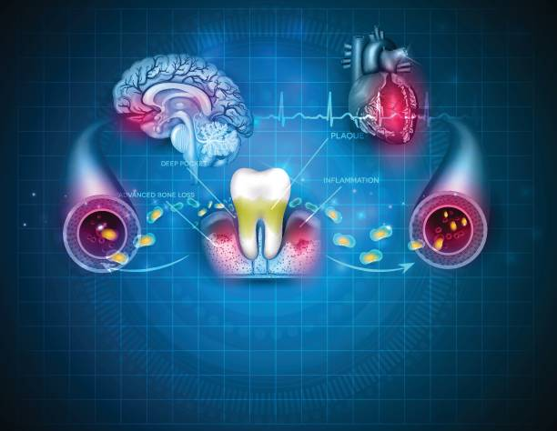 Inflamed gums bacteria Complications of gum disease Periodontitis.  Bacteria from inflamed gums can enter in to the blood stream and affect other organs such as heart and brain. Beautiful abstract blue design poster. inflammation stock illustrations