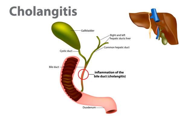 Inflammation of the bile duct Inflammation of the bile duct (Ascending cholangitis or acute cholangitis) bile stock illustrations