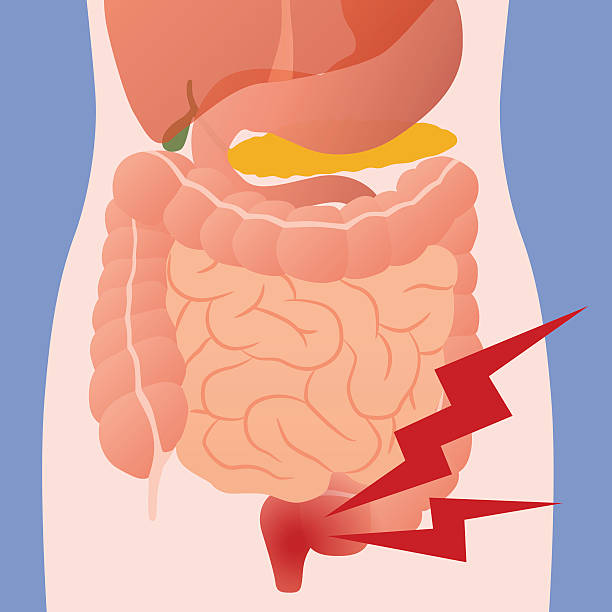 inflammation of the intestine and human digestive organs vector art illustration
