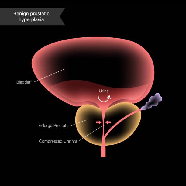 Prostatitis élet