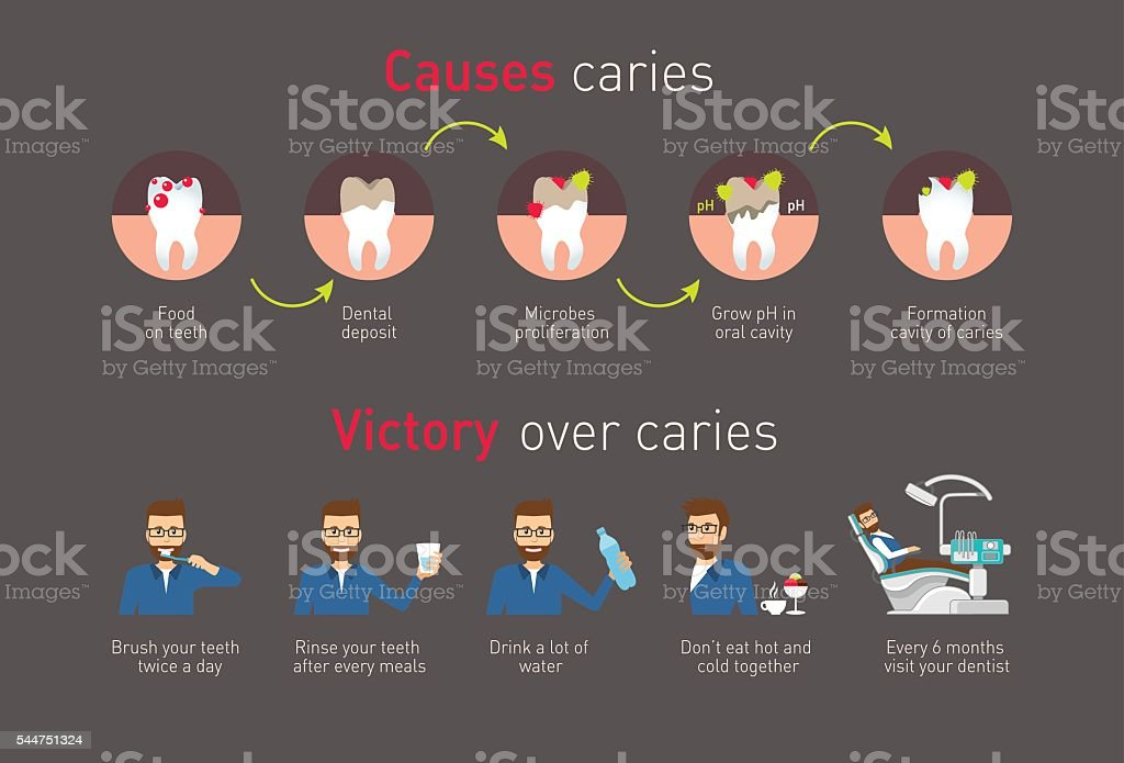 Infographic: Causes caries and victory over caries vector art illustration