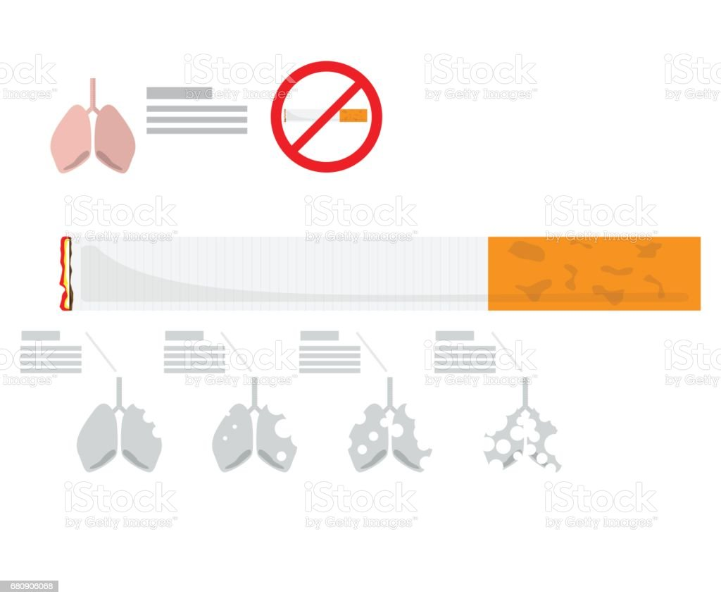 infographic for lung destroy from cigarette, tobacco royalty-free infographic for lung destroy from cigarette tobacco stock vector art & more images of addict