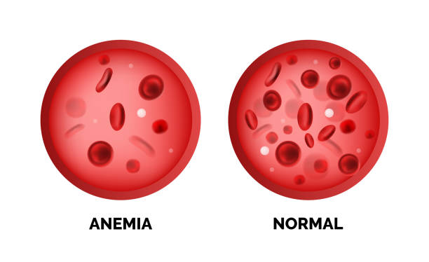Infographic image of anemia isolated on white background Infographic image of anemia isolated on white background. Realistic vector 3d picture of red blood cells or hemoglobin amount in human blood red blood cell stock illustrations