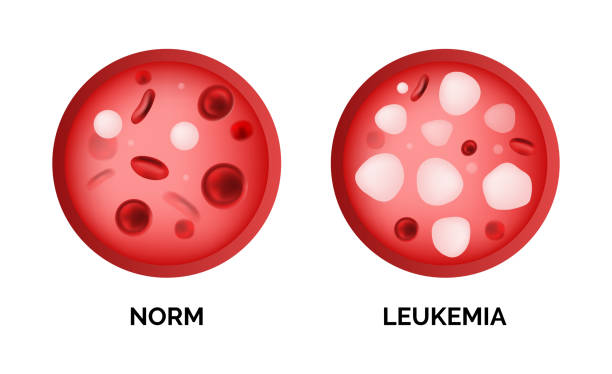 Infographic image of leukemia, lukemia or leukaemia isolated Infographic image of leukemia, lukemia or leukaemia isolated on white background. Realistic vector 3d picture of blood cells in human vein anemia stock illustrations