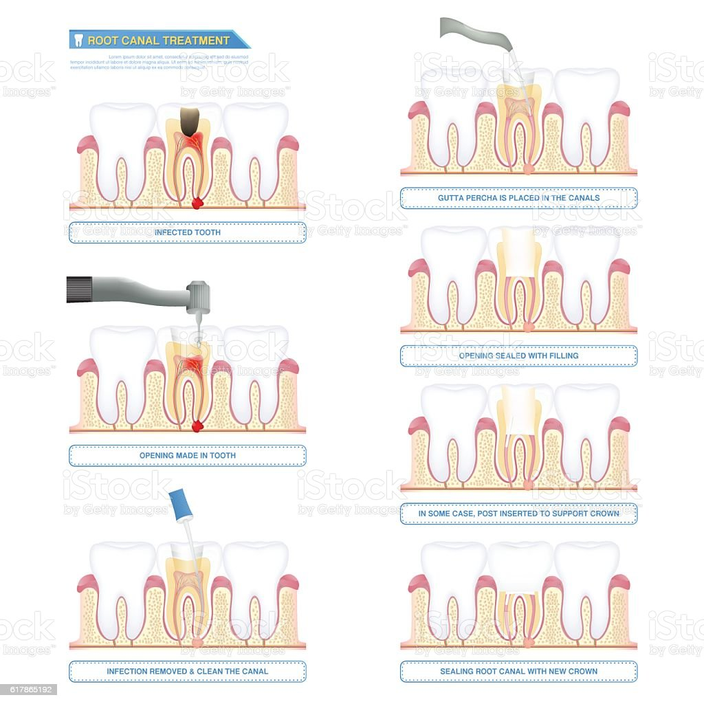 infographic root canal treatment, stages of root canal therapy vector art illustration