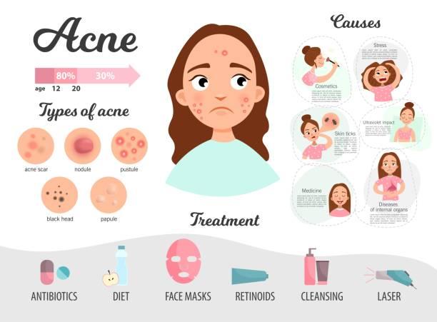Infographics of acne. vector art illustration