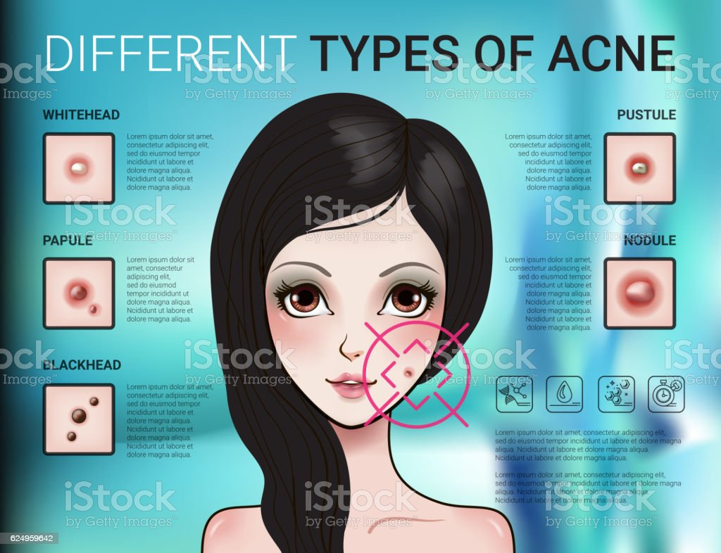 Infographics of different type of skin acne vector art illustration
