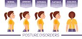 Infographics of posture disorders.