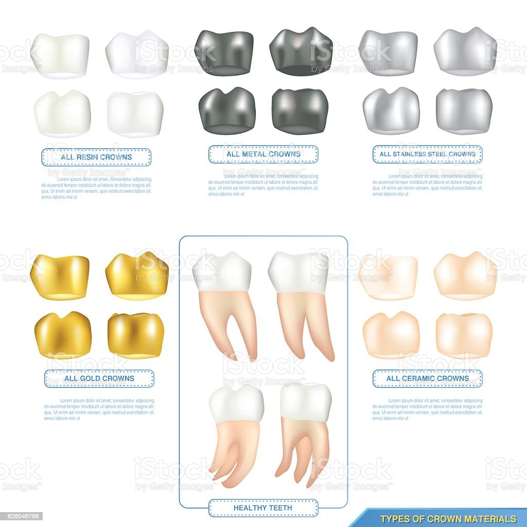 infographics types of dental crown materials with healthy teeth vector art illustration
