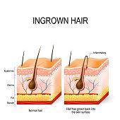 Ingrown hair after having