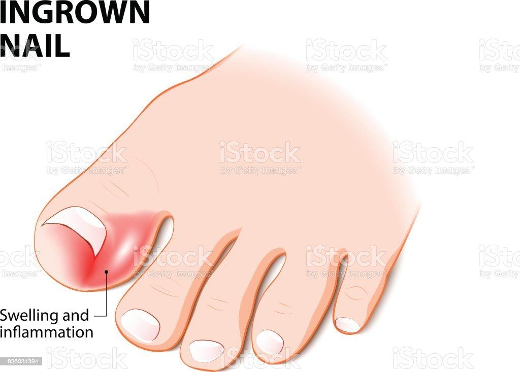 Ingrown nail. onychocryptosis vector art illustration