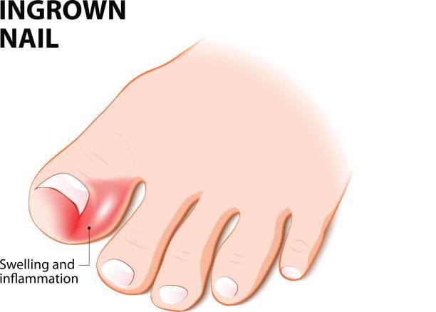 足の爪 イラスト素材 - iStock