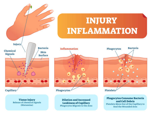 Injury inflammation biological human body response vector illustration scheme. Skin surface injury cross section poster with capillary, phagocytes and platelets. Injury inflammation biological human body response vector illustration scheme. Skin surface injury cross section poster with capillary, phagocytes and platelets fighting bacteria and healing wound. medical diagram stock illustrations