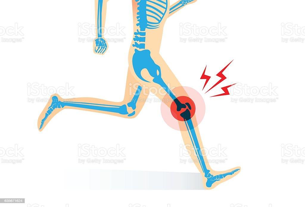 Injury Of Knee Bone And Leg While Running Stock Vektor Art Und Mehr