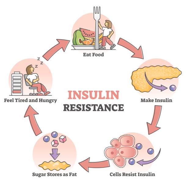 Insulin resistance pathological health condition educational outline diagram vector art illustration
