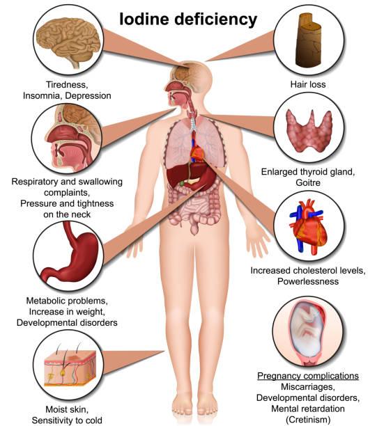 ilustraciones, imágenes clip art, dibujos animados e iconos de stock de deficiencia de yodo ilustración vectorial médica 3d aislada en fondo blanco eps 10 infografía - thyroxine