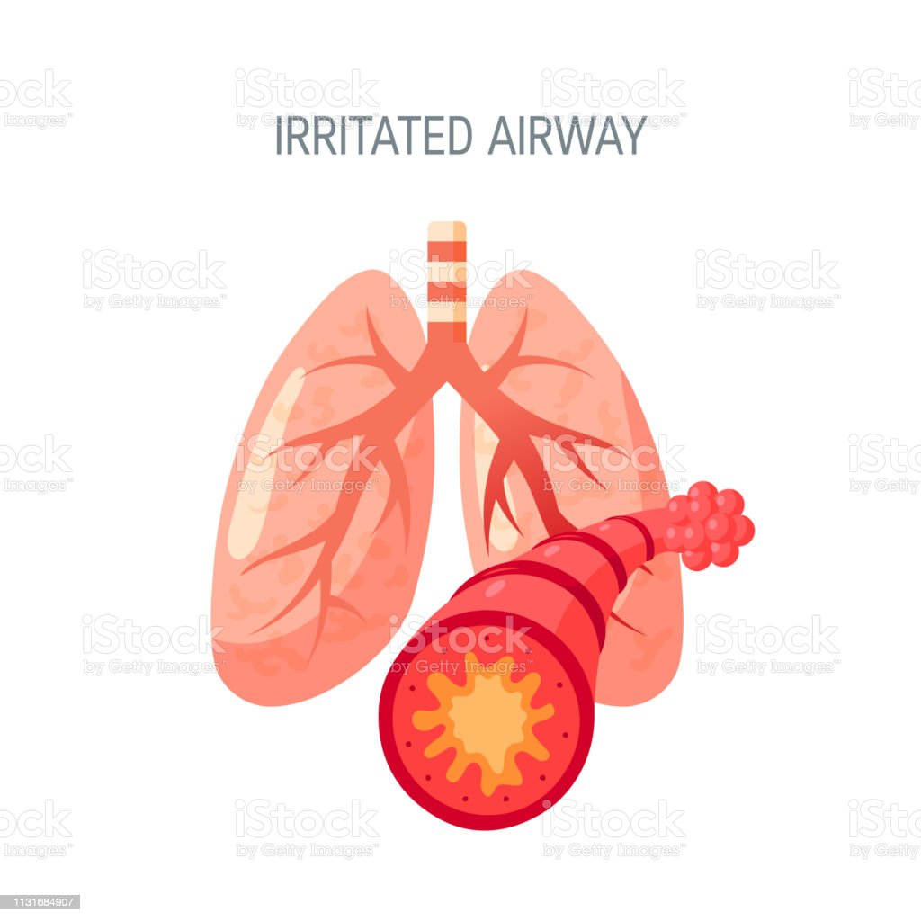 Irritated lungs vector icon in flat style vector art illustration