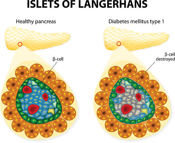 islets of Langerhans islets of Langerhans and diabetes mellitus type 1. islet of langerhans stock illustrations