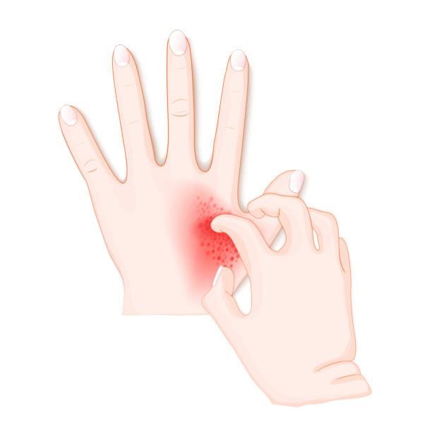 illustrazioni stock, clip art, cartoni animati e icone di tendenza di itch. human's hands with dermatitis. - irritazione