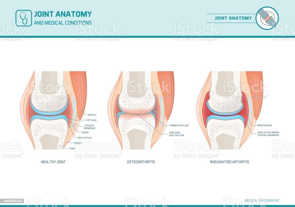 Joint anatomy, osteoarthritis and rheumatoid arthritis infographic royalty-free joint anatomy osteoarthritis and rheumatoid arthritis infographic stock illustration - download image now