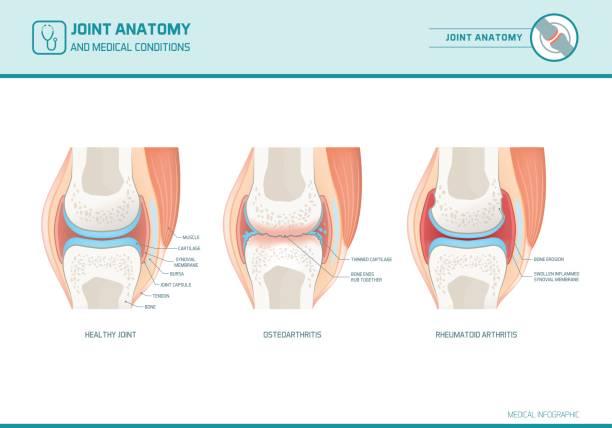 ilustrações, clipart, desenhos animados e ícones de conjunto infográfico anatomia, osteoartrite e artrite reumatoide - articulação humana