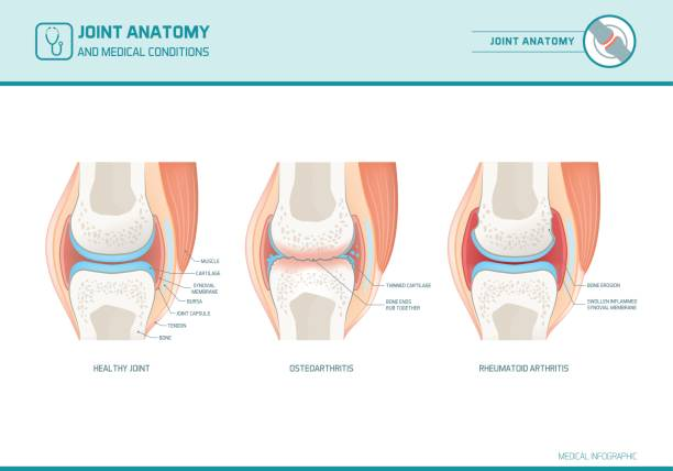 Joint anatomy, osteoarthritis and rheumatoid arthritis infographic vector art illustration