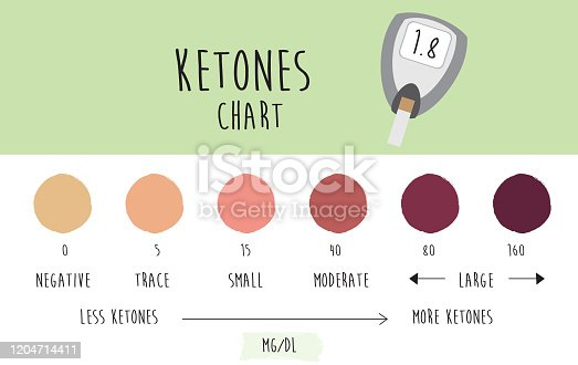 Ketogenic Reading Infographic Chart showing color coding for ketone level test