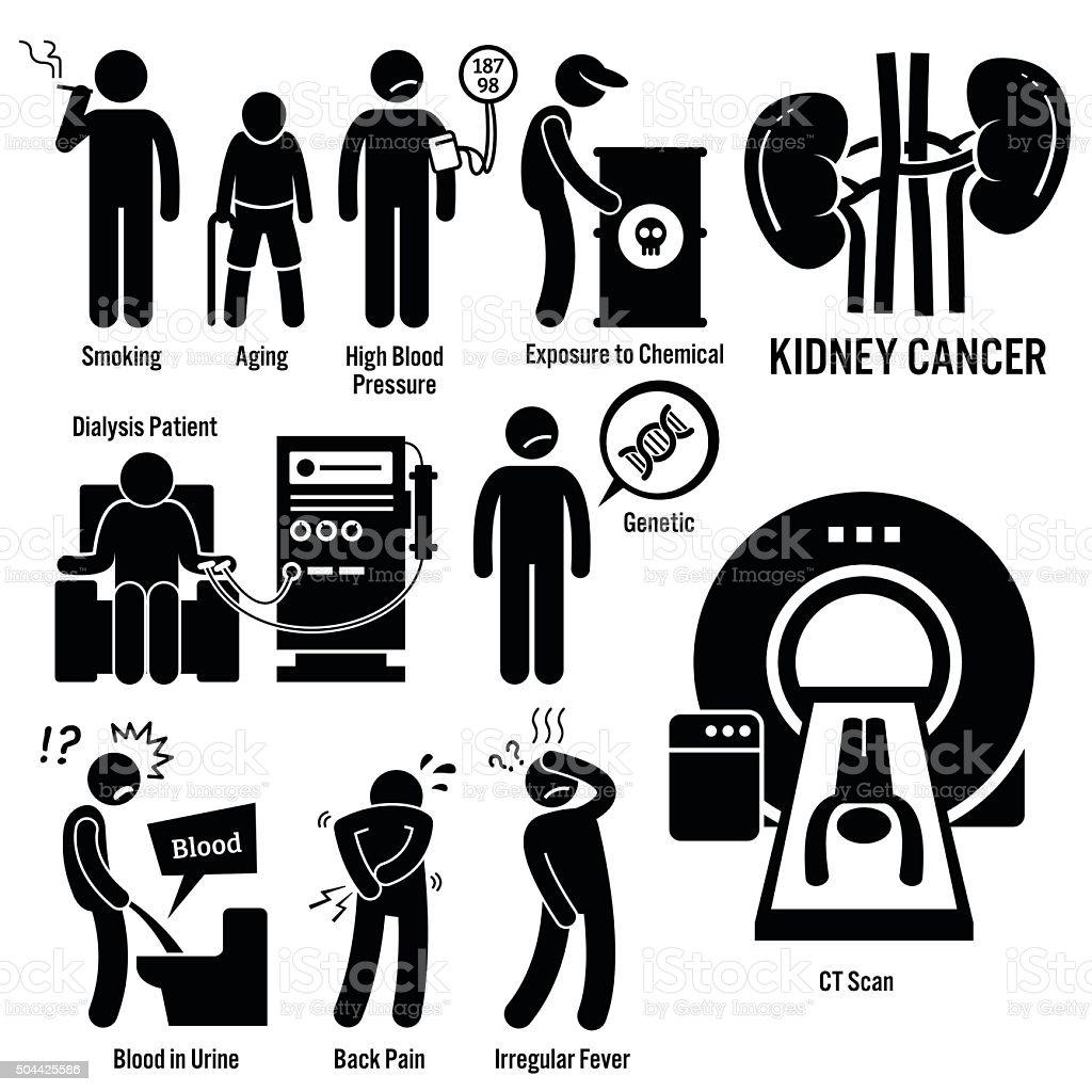 Kidney Cancer Illustrations vector art illustration