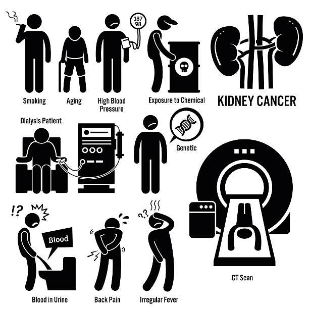 ilustrações de stock, clip art, desenhos animados e ícones de cancro dos rins ilustrações - diálise