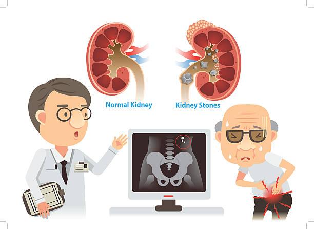 Kidney Stones Doctors are advising the old kidney stones. chronic illness stock illustrations