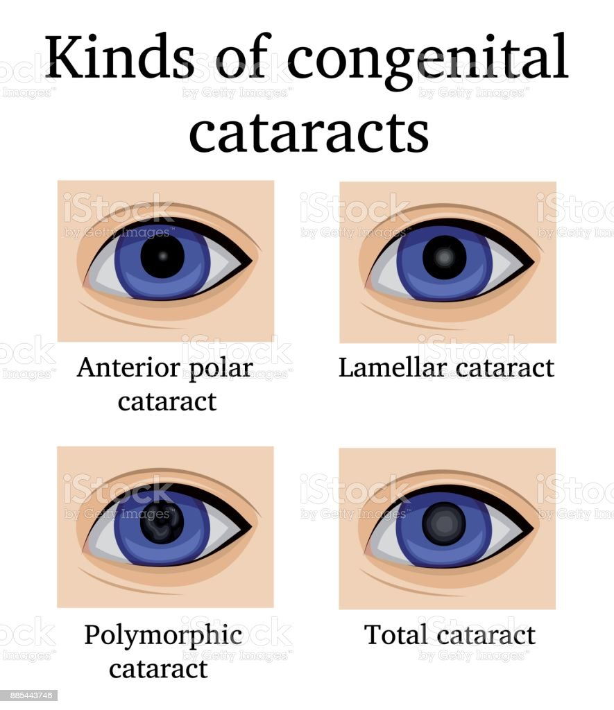 Kinds Of Congenital Cataracts Stock Vector Art & More Images of ...
