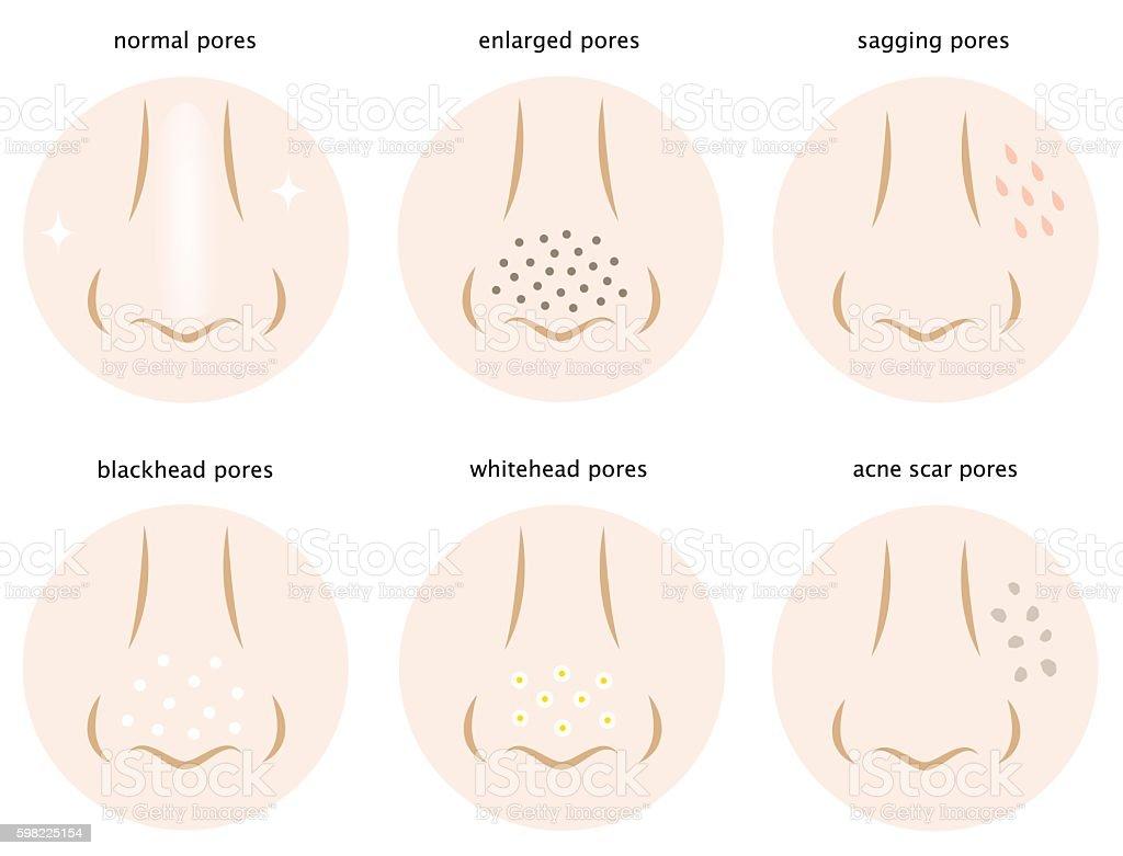 kinds of skin pores ilustração de kinds of skin pores e mais banco de imagens de beleza royalty-free