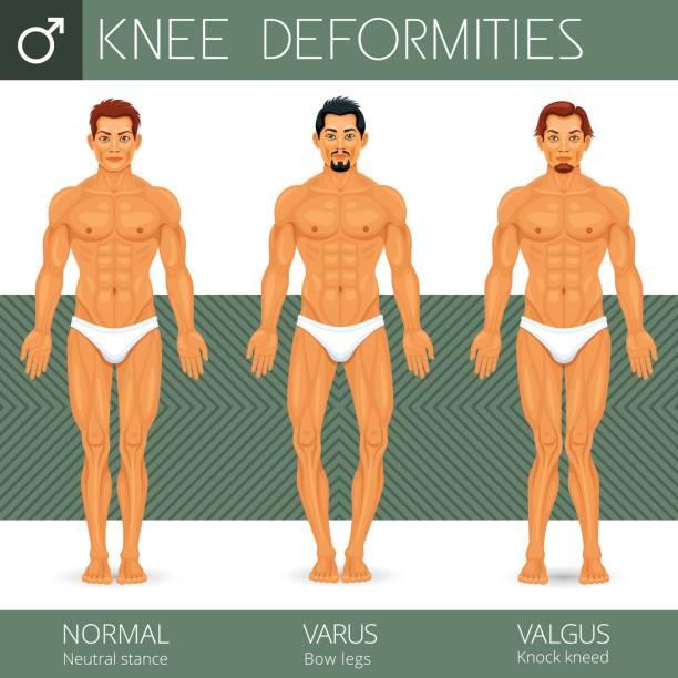 Knee deformity vector art illustration