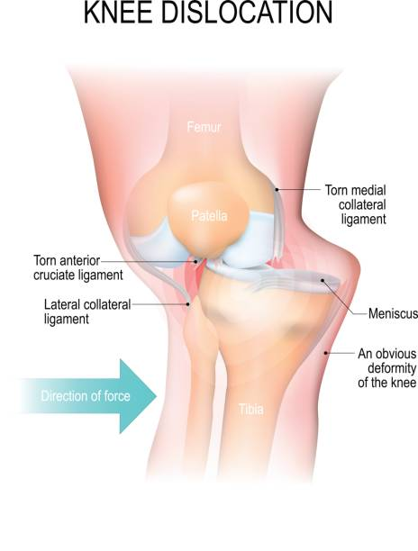 Royalty Free Lateral Collateral Ligament Clip Art, Vector Images ...