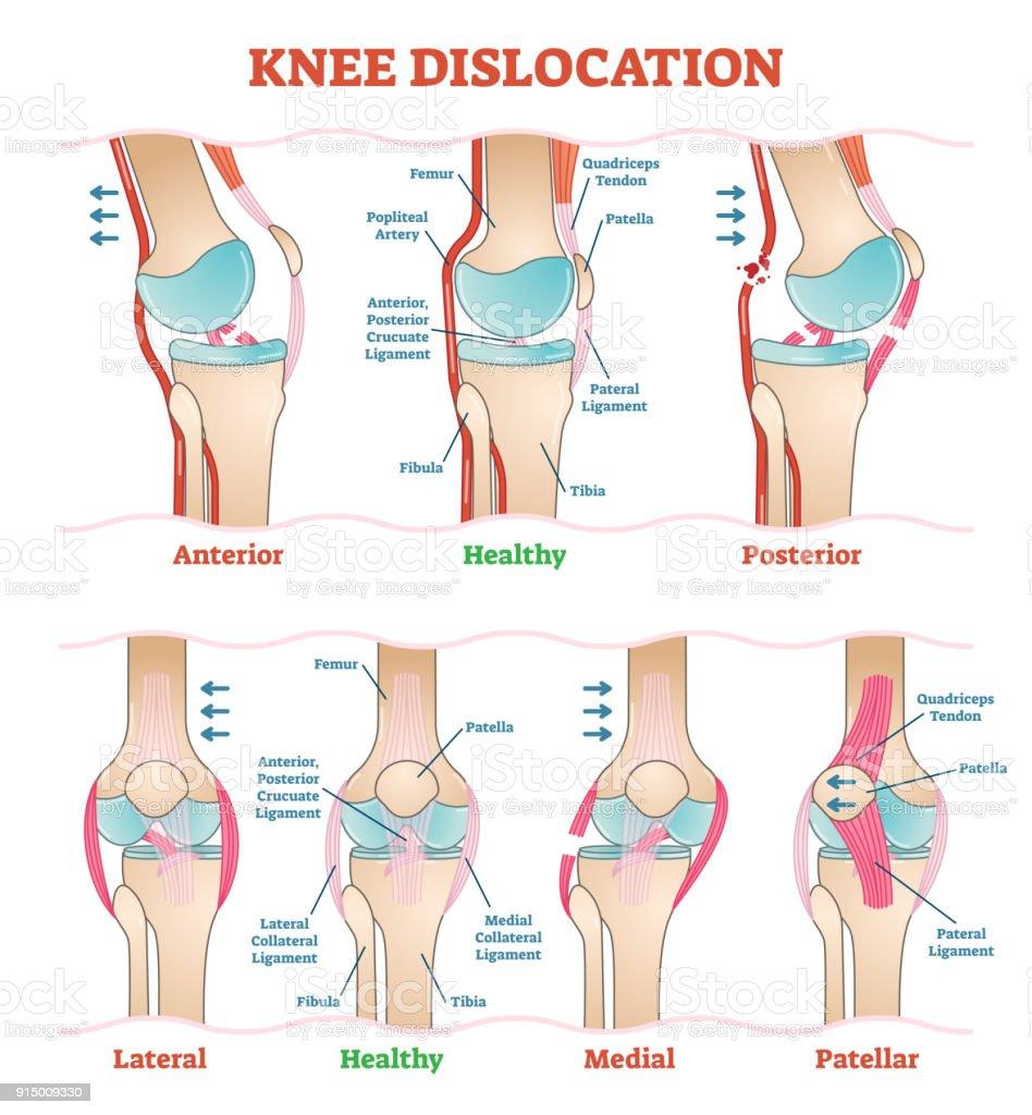 Knee Dislocations Medical Vector Illustration Diagrams Anatomical ...
