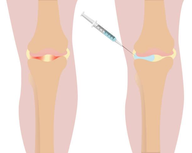 иллюстрация вектора покраснением коленного сустава - physical therapy stock illustrations