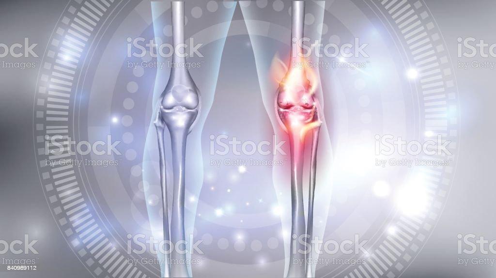 Knee joint problems vector art illustration