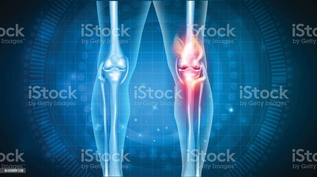 Knee pain abstract design royalty-free knee pain abstract design stock illustration - download image now