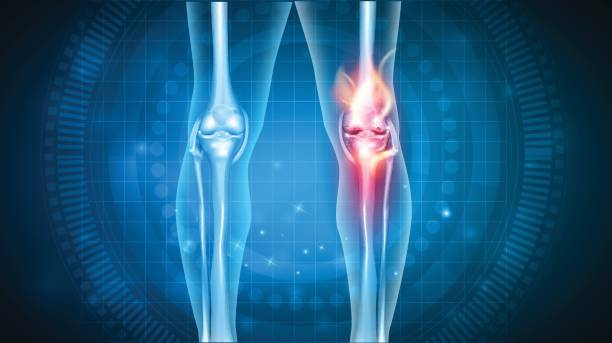 Knee pain abstract design vector art illustration