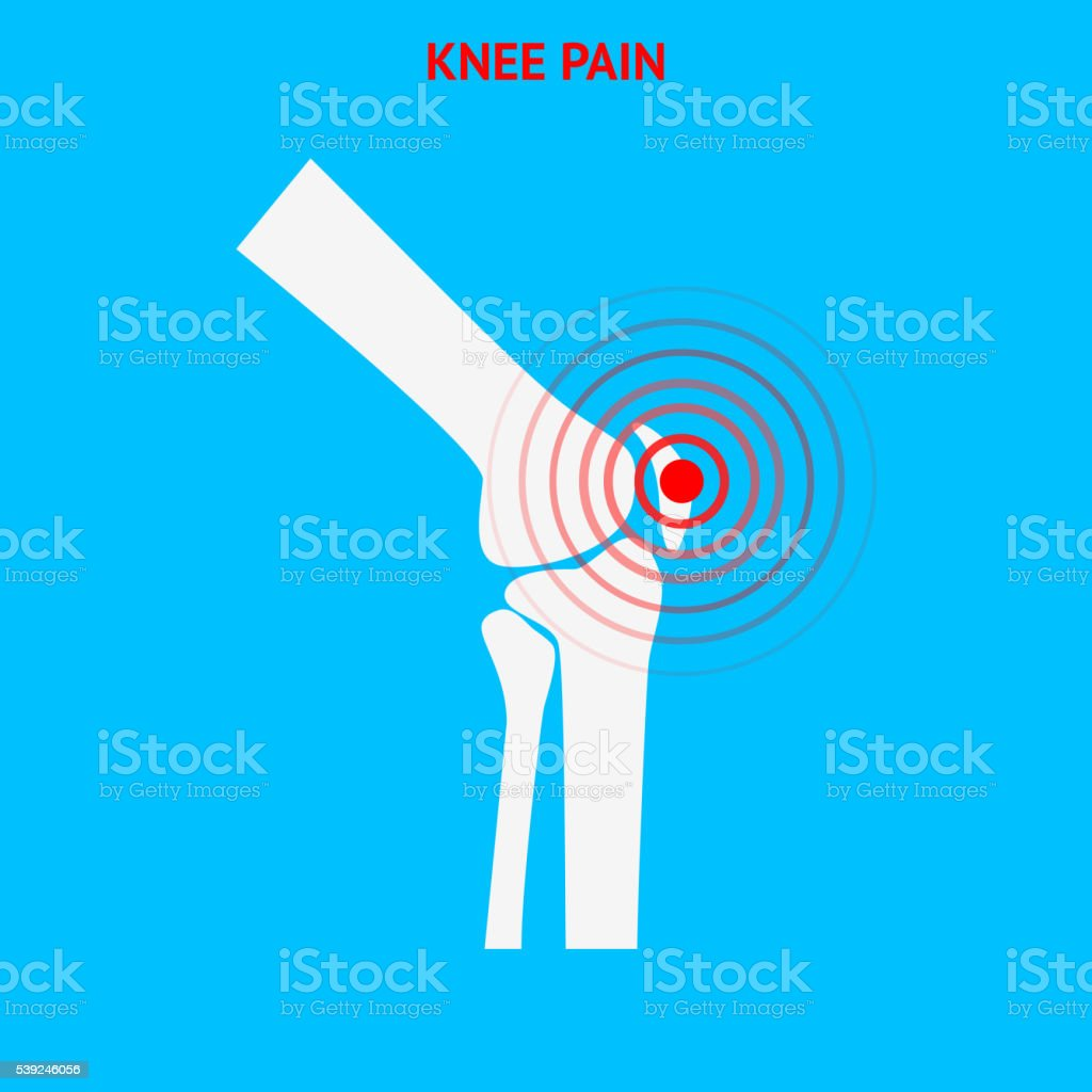 Knee pain. Knee pain icon isolated on white background. vector art illustration