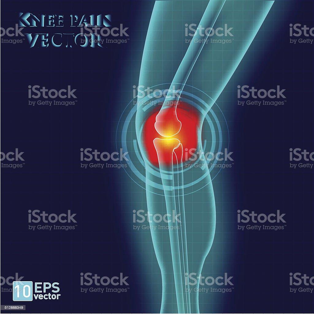 Kneee pain vector art illustration
