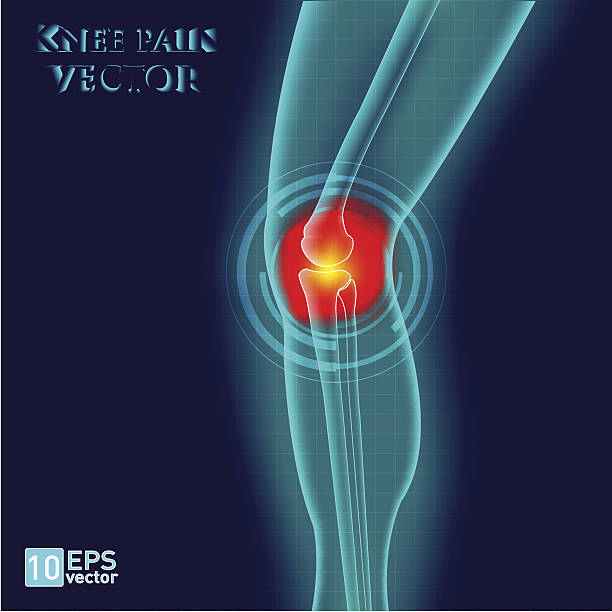Kneee pain vector art illustration